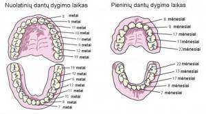 vaiku dantys 2