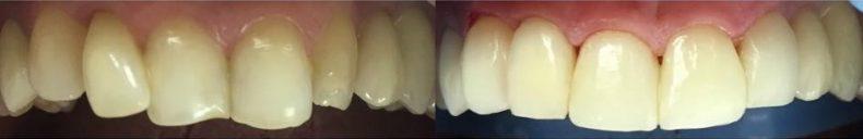 estetinis plombavimas kreiv dantys